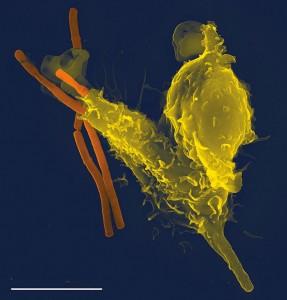 immunsystemet bekæmper en indtrænger